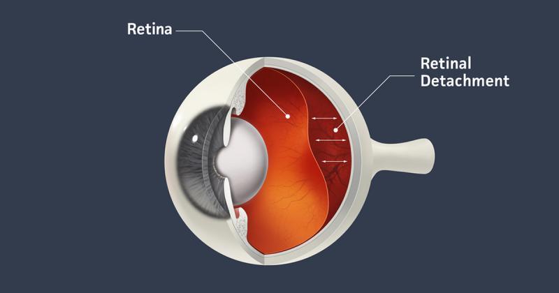 Mengenal Retina, Bagian Mata Paling Sensitif