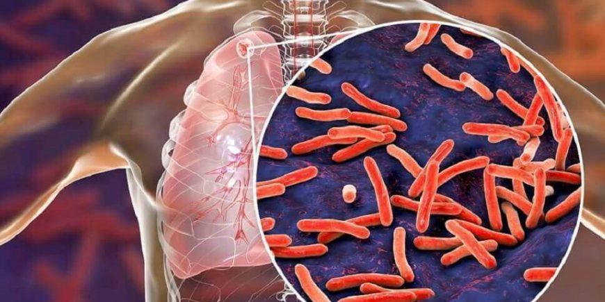 Apa yang Menyebabkan Penyakit TBC? Bagaimana Cara Pencegahannya?