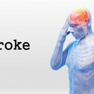 Hal yang Jadi Penyebab Sakit Stroke, Awas Jangan Sepelekan