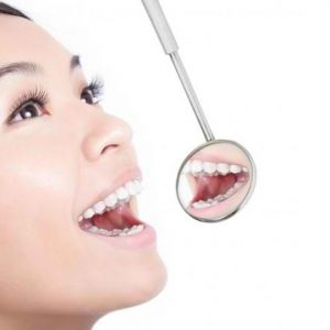 Kenapa Harus Periksa ke Dokter Gigi Jogja?